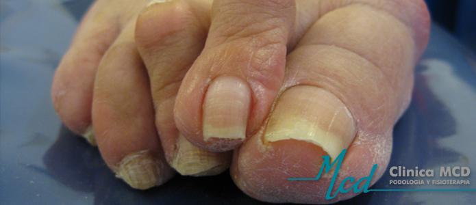 Donde en moskve curar el hongo de las uñas